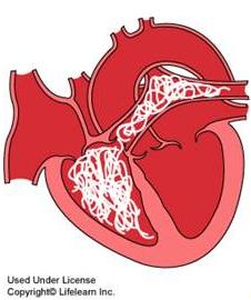 heartworm cartoon diagram